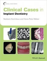 Clinical Cases in Implant Dentistry