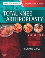 Total Knee Arthroplasty, 2nd Ed.