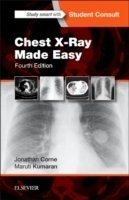 Chest X-Ray Made Easy 4th Ed.