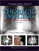 Thoracic Imaging: Pulmonary and Cardiovascular Radiology, 2nd Rev.Ed.