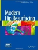 Modern Hip Resurfacing