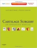 Cartilage Surgery : An Operative Manual, Expert Consult: Online and Print