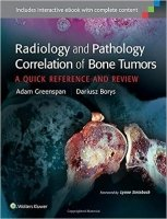 Radiology and Pathology Correlation of Bone Tumors
