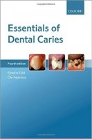 Essentials of Dental Caries, 4th Ed.