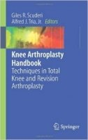 Knee Arthroplasty Handbook