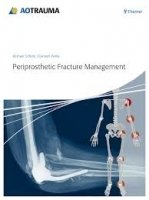 Periprosthetic Fracture Management