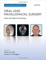 Challenging Concepts in Oral and Maxillofacial Surgery