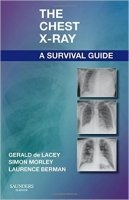 The Chest X-Ray: A Survival Guide