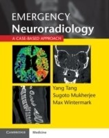 Emergency Neuroradiology : A Case-Based Approach