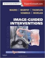 Image-Guided Interventions : Expert Radiology Series 2nd Ed.