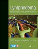 Lymphedema : Complete Medical and Surgical Management