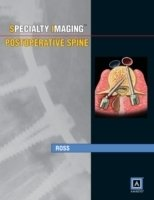 Specialty Imaging: Postoperative Spine