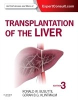 Transplantation of the Liver 3th ed.