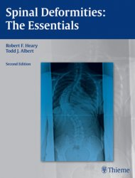 Spinal Deformities: the Essentials, 2nd Rev ed.
