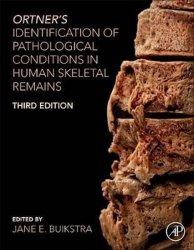 Ortner's Identification of Pathological Conditions in Human Skeletal Remains - Jane E. Buikstr