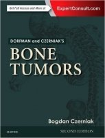 Dorfman and Czerniak's Bone Tumors, 2nd Ed.