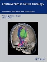 Controversies in Neuro-Oncology Best Evidence Medicine for Brain Tumor Surgery