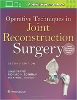 Operative Techniques in Joint Reconstruction Surgery, 2nd Ed.
