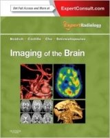 Imaging of the Brain : Expert Radiology Series