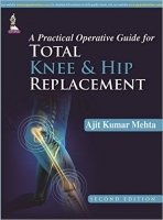 Practical Operative Guide for Total Knee and Hip Replacement, 2nd Ed.