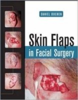 Skin Flaps in Facial Surgery