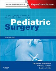 Ashcraft´s Pediatric Surgery: Expert Consult - Online + Print, 6e (Expert Consult Title: Online + Print) - Dominic James Holcombe; neuveden