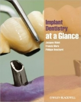 Implant Dentistry at Glance - Jacques Malet, Francis Mora, Philippe Bouchard