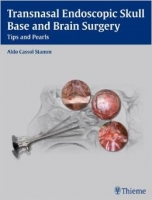 Transnasal Endoscopic Skull Base and Brain Surgery - Cassol ...