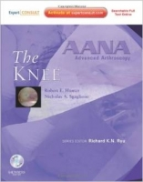 AANA Advanced Arthroscopy: Knee : Expert Consult: Online, Pr...