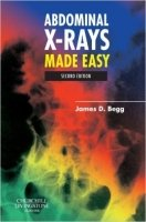 Abdominal X-rays Made Easy, 2nd Ed. - Begg, J. D.