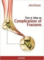 Text and Atlas of Complications of Fractures - Ebnezar, J.
